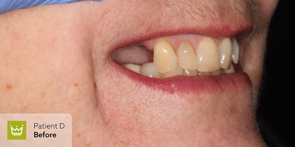 Kingdom Clinic - Patient D before treatment