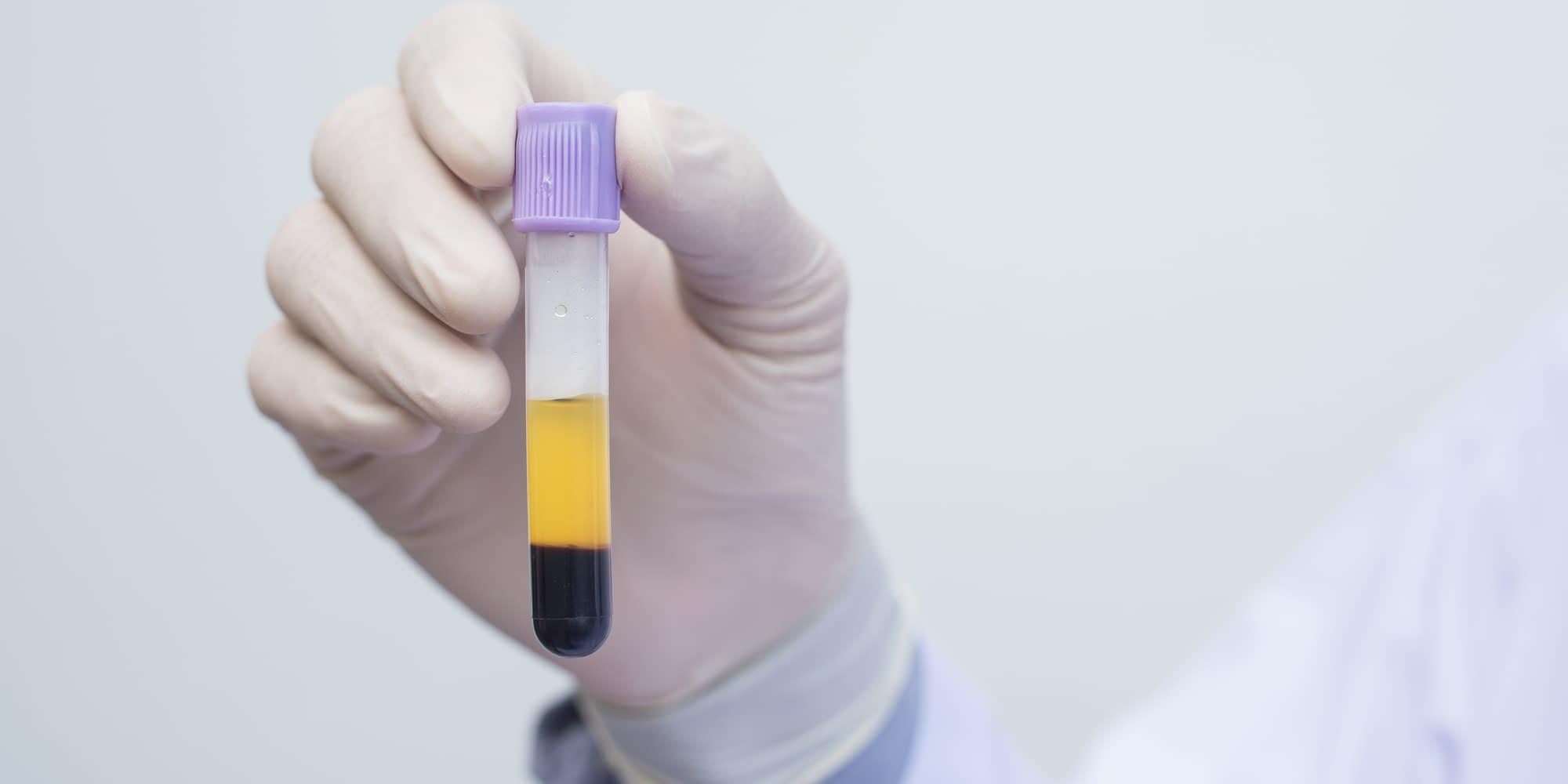 PRGF Biotechnology