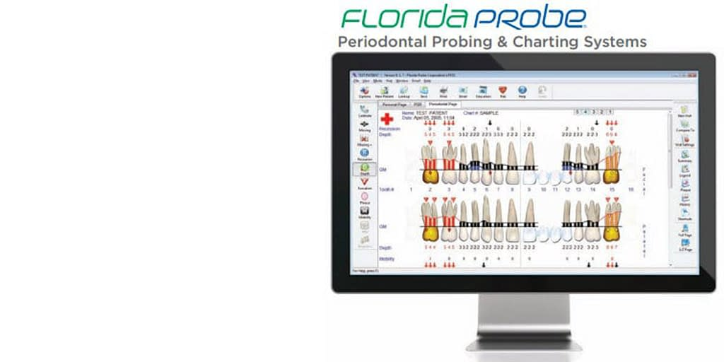 The Florida Probe System