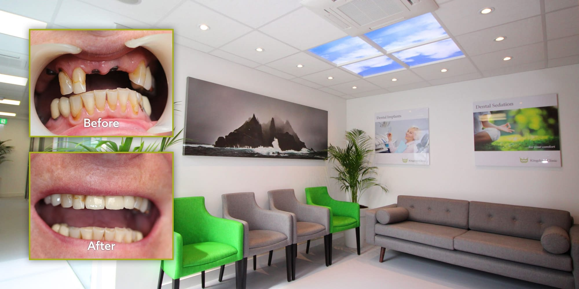 Before and after photos at Kingdom Clinic, Killarney